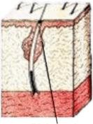 Akne heilt